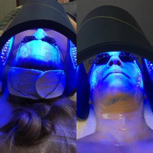 S2E ionactive treatment